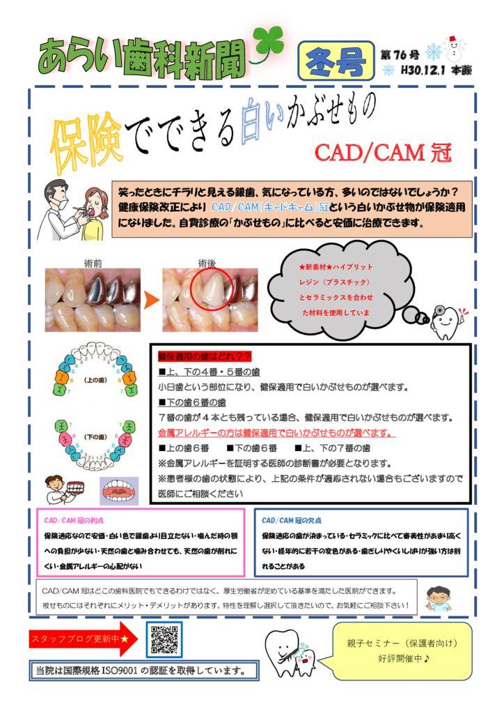 第76号 CAD/CAM冠